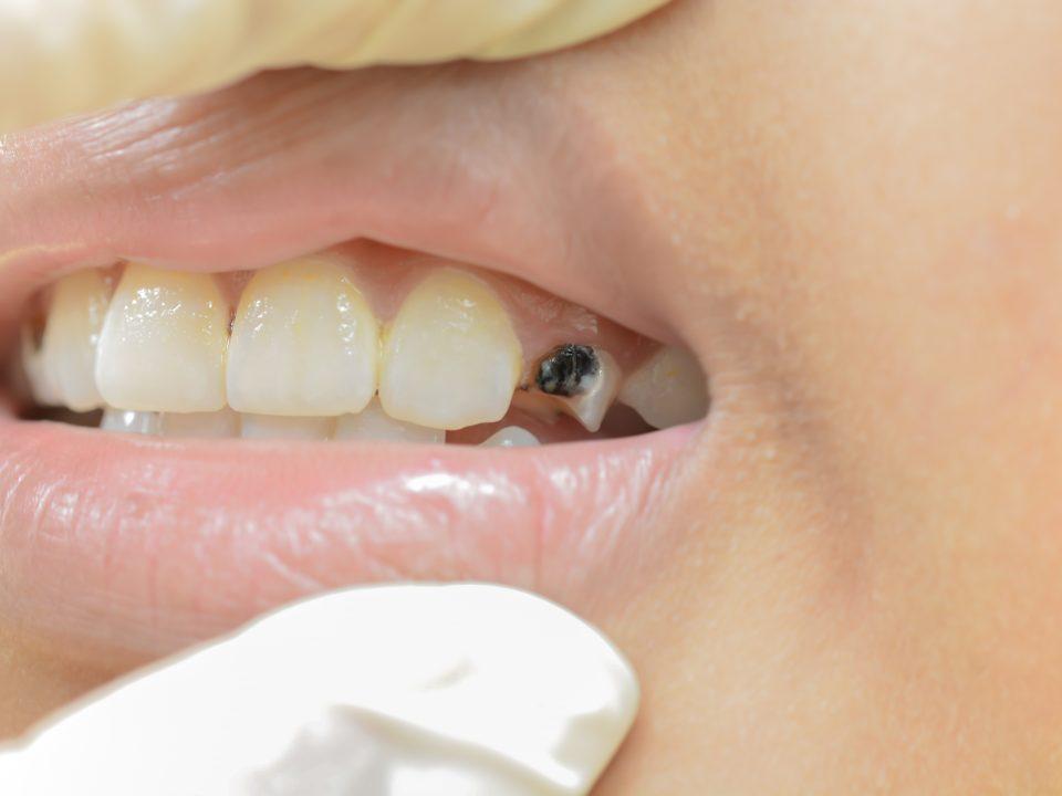 Merawat gigi anak karies