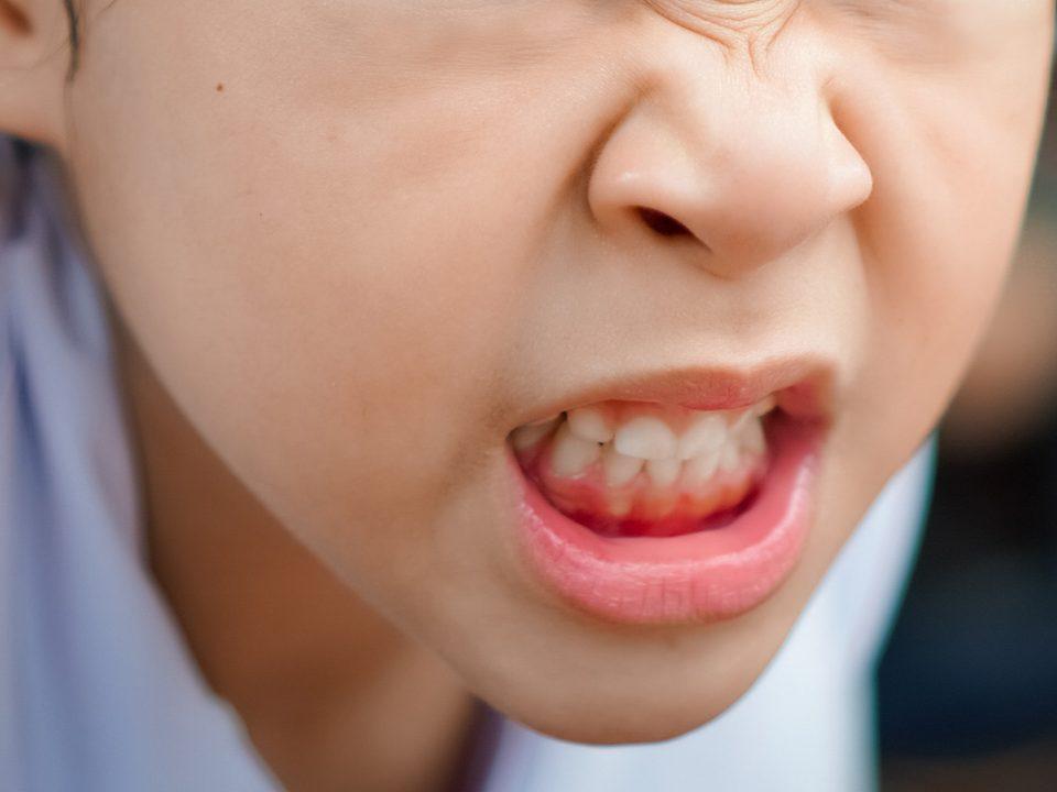 Cara mengatasi anak suka menggigit