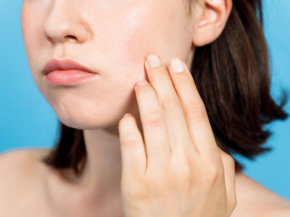 Mengatasi kulit mengelupas